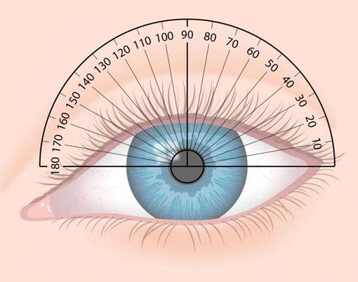 astigmatic-lens