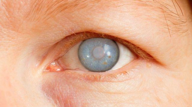 Возникновение глаукомы