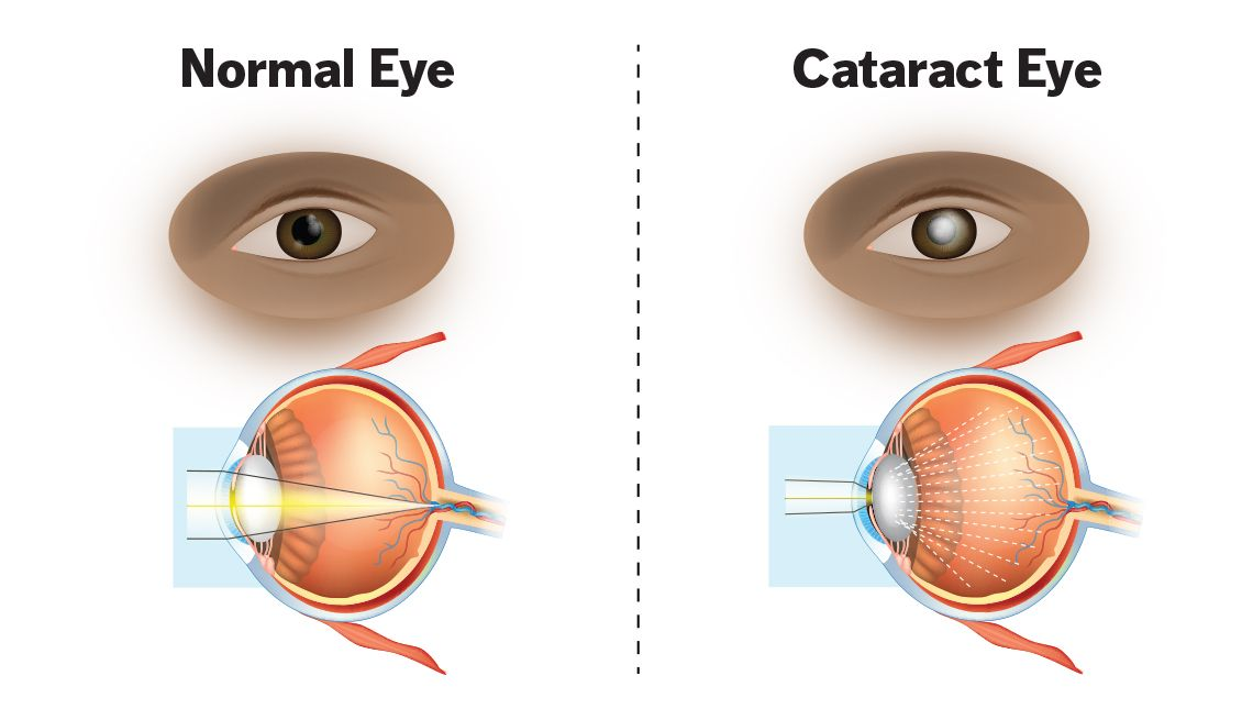 Развитие катаракты глаза