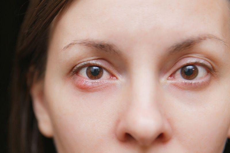 ячмень глазной