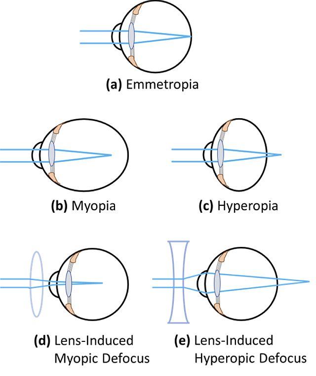 Виды нарушения рефракции зрения