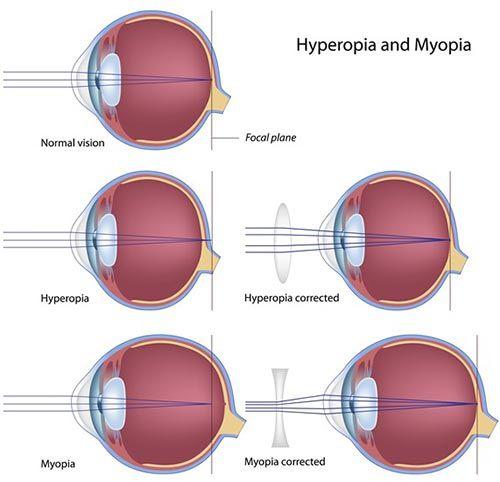 Рефракционные нарушения зрения